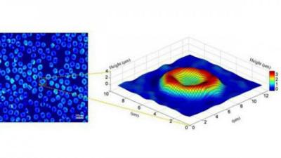 Quantitative phase image